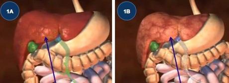 fedt omkring organerne