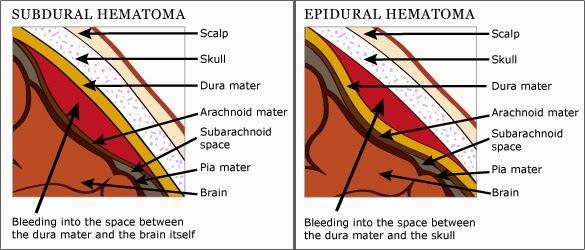 hematoma-01
