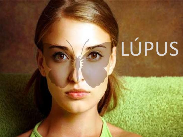 http://4.bp.blogspot.com/-0rWjcW-ytM8/Via6bYq7wXI/AAAAAAAAAeY/wXVlPd9RKV8/s1600/lupus-eritematoso-1-728.jpg