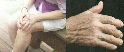 Gambar Penyakit Flu Tulang