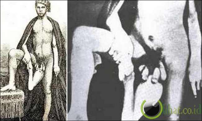 Juan Baptista dos Santos - Pria dengan Dua penis