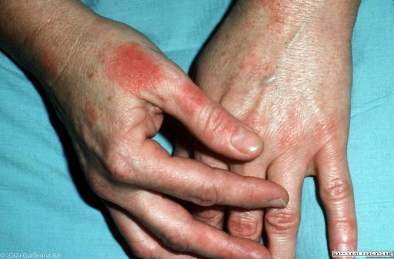 Latex allergy hives