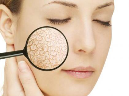 Nguyên nhân làm mỏng da mặt và cách chăm sóc da mỏng