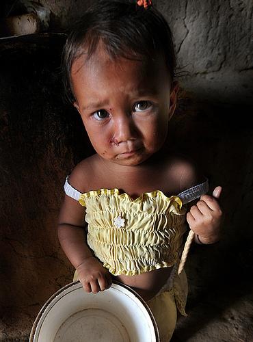 fome-mudial
