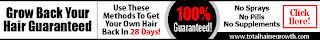 hair regrowth home remedy, hair regrowth