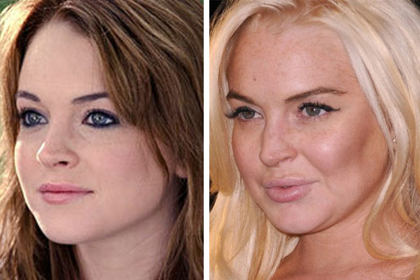 Lindsay Lohan Before And After: Now & Then Photo ...