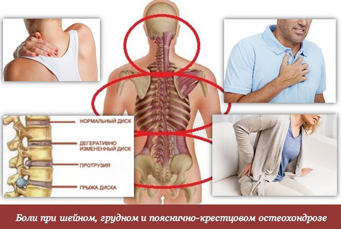 Лечение остеохондроза в грудном отделе в домашних  295