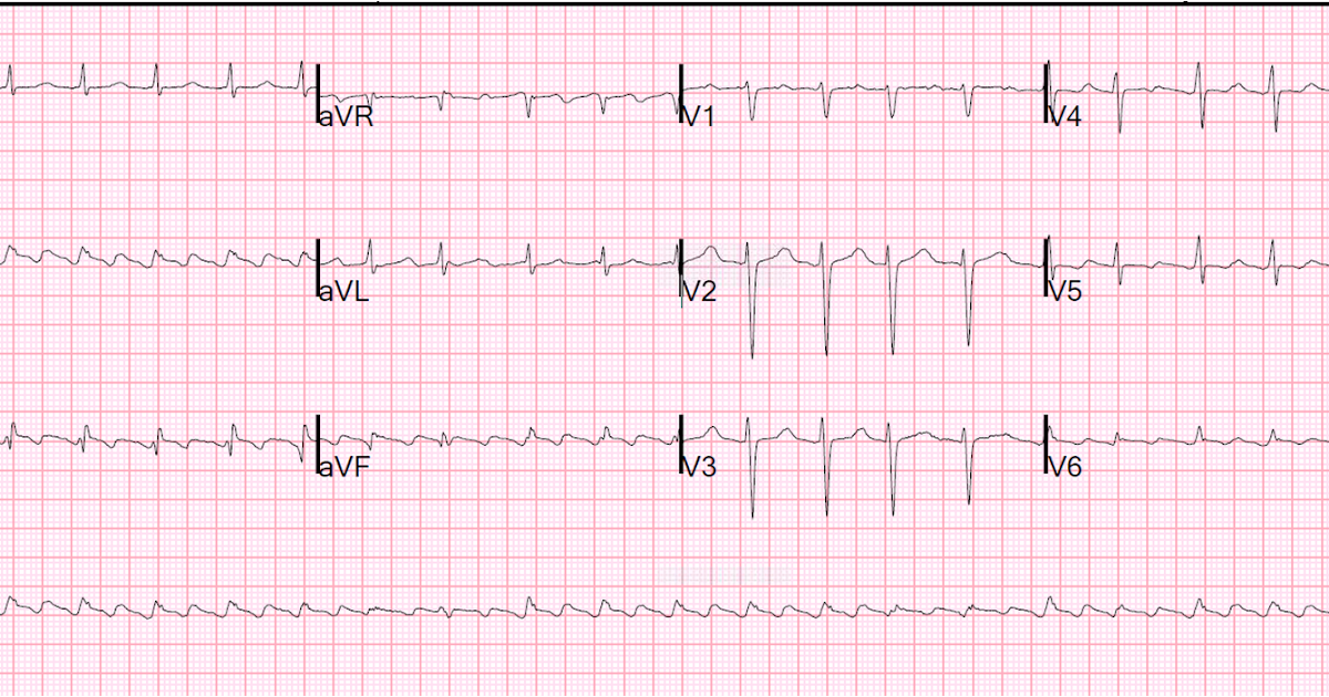 dr smith s ecg blog atrial flutter with inferior stemi