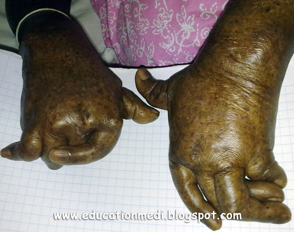 Psoriatic Arthritis affecting hand (Photos)