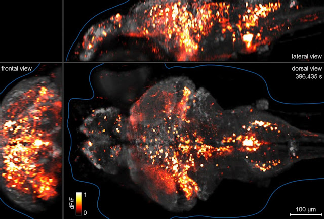 Incredible Whole Brain Cellular Mapping Achieved In Zebrafish