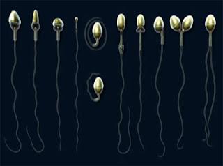 Formas anormales del espermatozoide