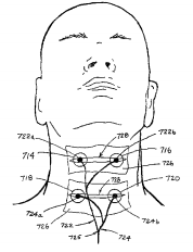 Fig. 7B of '873 patent