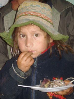 desnutricion infantil