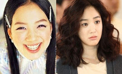Jung Ryeo Won Before After
