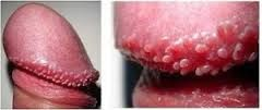 infecciones en el pene