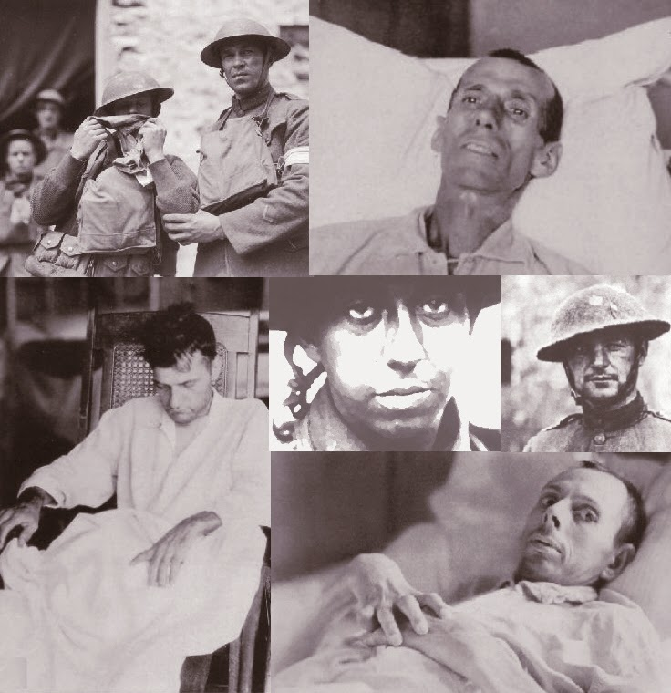 the treatment of shell shock victims essay As canada goes to war again, it knows that some fighters may come back with crippling wounds that do not show the situation was radically different a century ago no one was prepared for what shell shock was about to do.