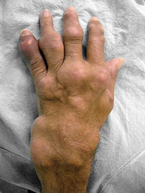 que provoca el acido urico en los pies urato acido urico basso que no puedo comer por el acido urico