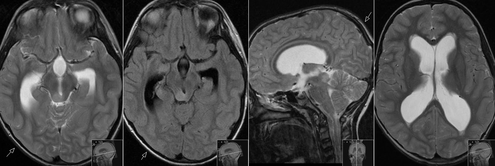 Radiology MRI: Tectal Glioma