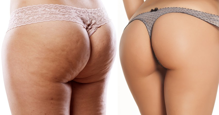 Und butsiricor: cellulite dünn trotzdem Cellulite adé: