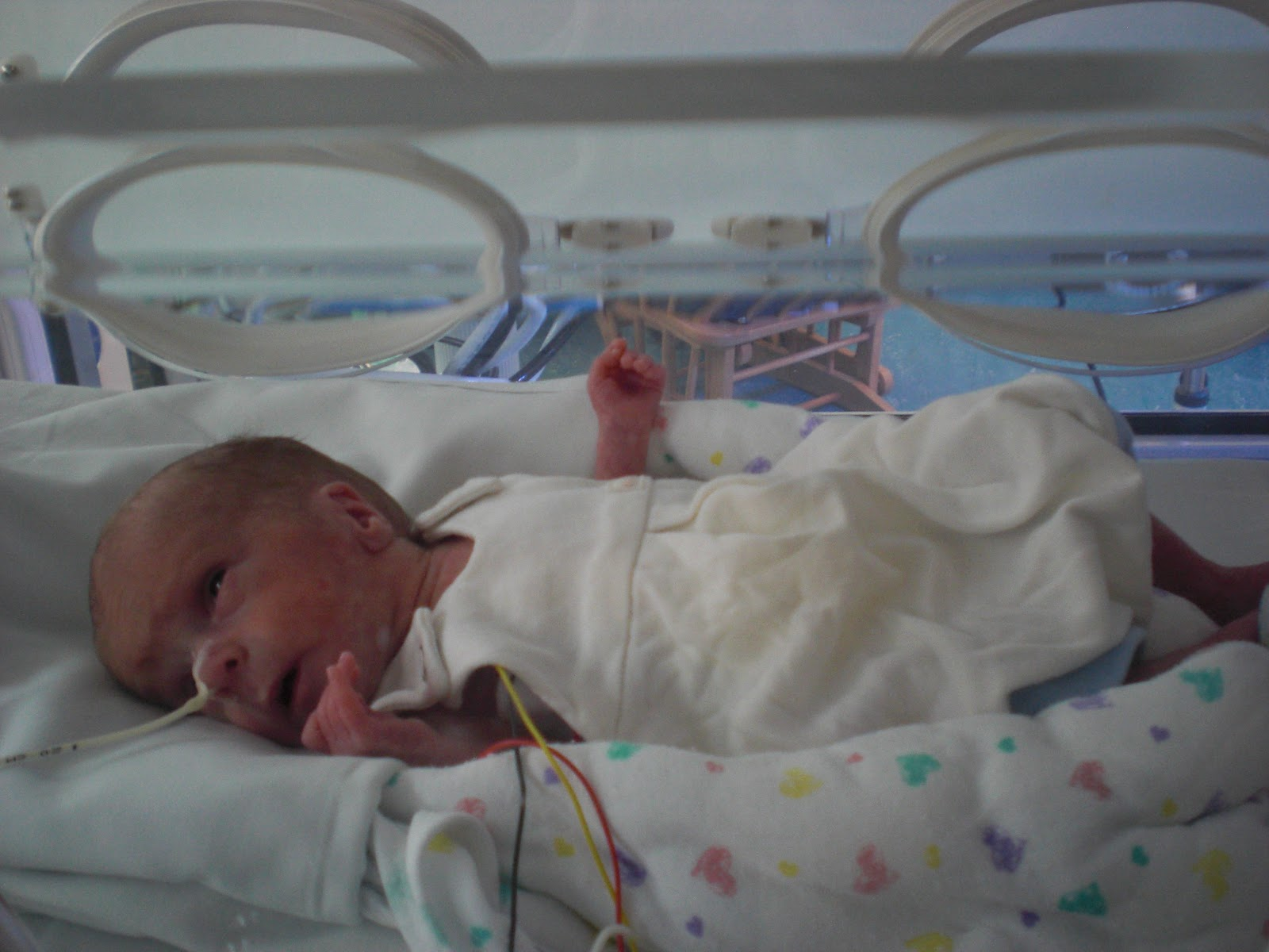 Survival rate baby born 7 months