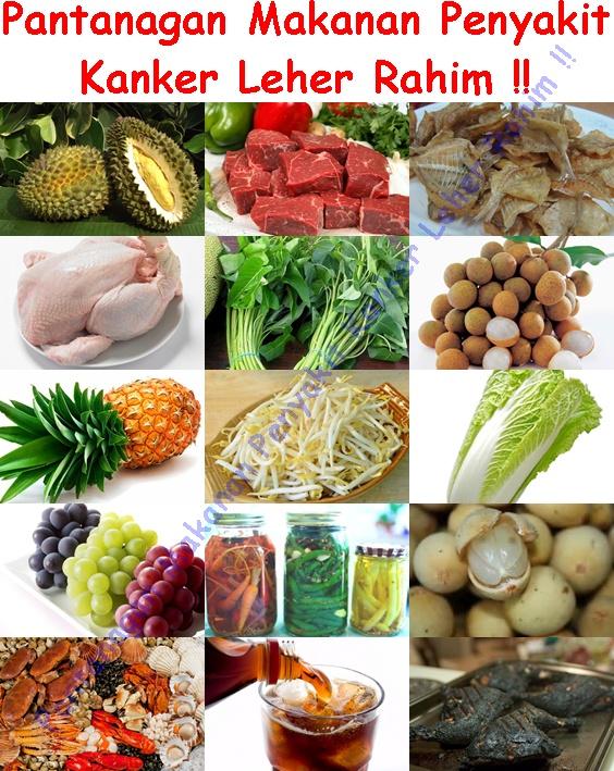 Pantangan Makanan Penderita Penyakit Kanker Leher Rahim