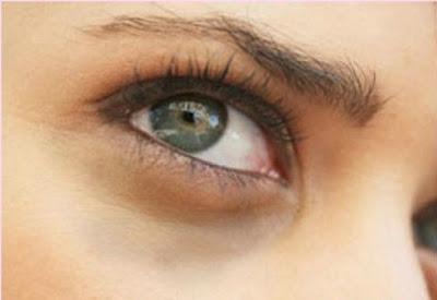 خلطة طبيعية لإزالة السواد تحت العينين  - عيون - عينان - عين