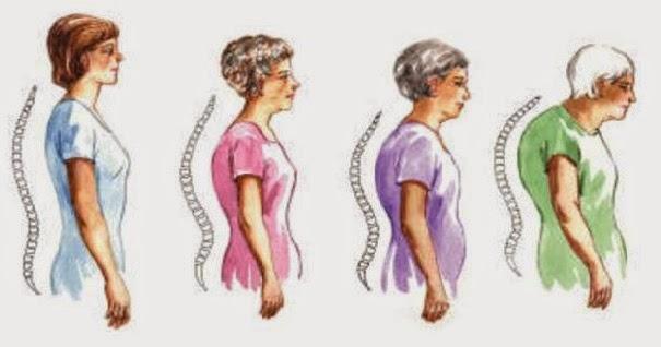 ALIMENTOS QUE AYUDAN A PREVENIR LA OSTEOPOROSIS.