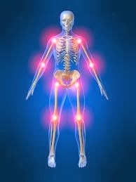 Arthritis Pain, Reduce Arthritis Pain
