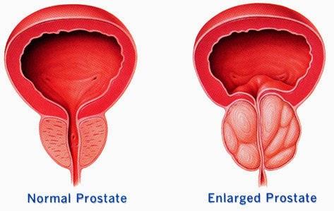 tumor Prostat stadium 2, obat alami kanker Prostat stadium 1, obat alami kanker Prostat stadium 2