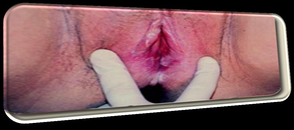 Candidiasis Vaginitis
