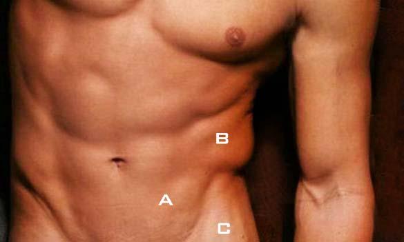 人魚線, 膨脹麻醉抽脂, tumescent liposuction
