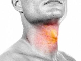 Gejala, Penyebab dan Jenis Kanker Tenggorokan