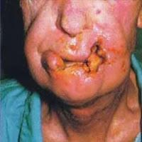 cancer oral, cáncer oral síntomas, sintomas cancer oral, sintomas de cancer oral, cancer oral causas, tratamiento cancer oral,