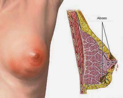 Pengobatan gejala kanker payudara