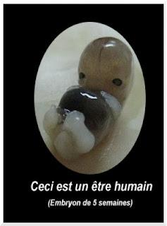 Ceci est un être humain: un embryon de 5 semaines