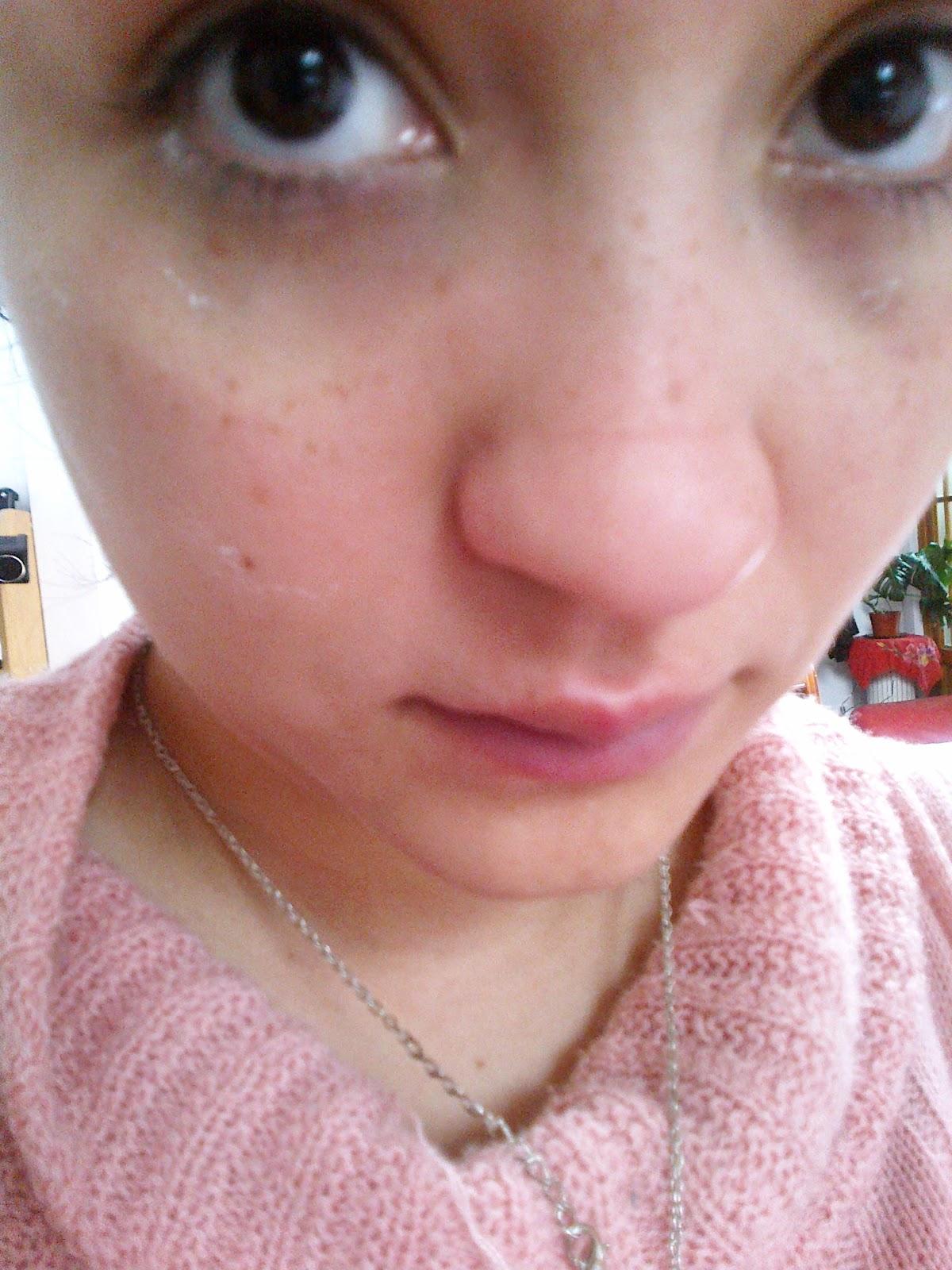 El acné al niño 1 mes