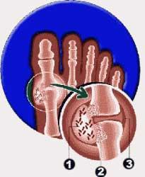 Niveles normales acido urico causas y que evitar