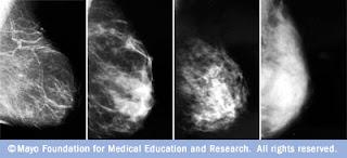 marla crider, breast cancer, blog, St. Vincent Breast Center, Little Rock, Arkansas
