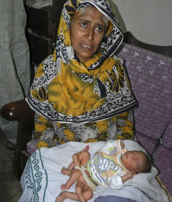 Σοκ! Παντρεύτηκε τον ξάδελφο της και γέννησε μωρό με 6 πόδια! (pics)