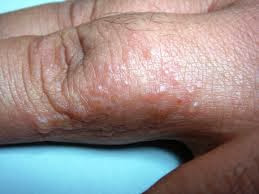 picture of Dyshidrotic Eczema