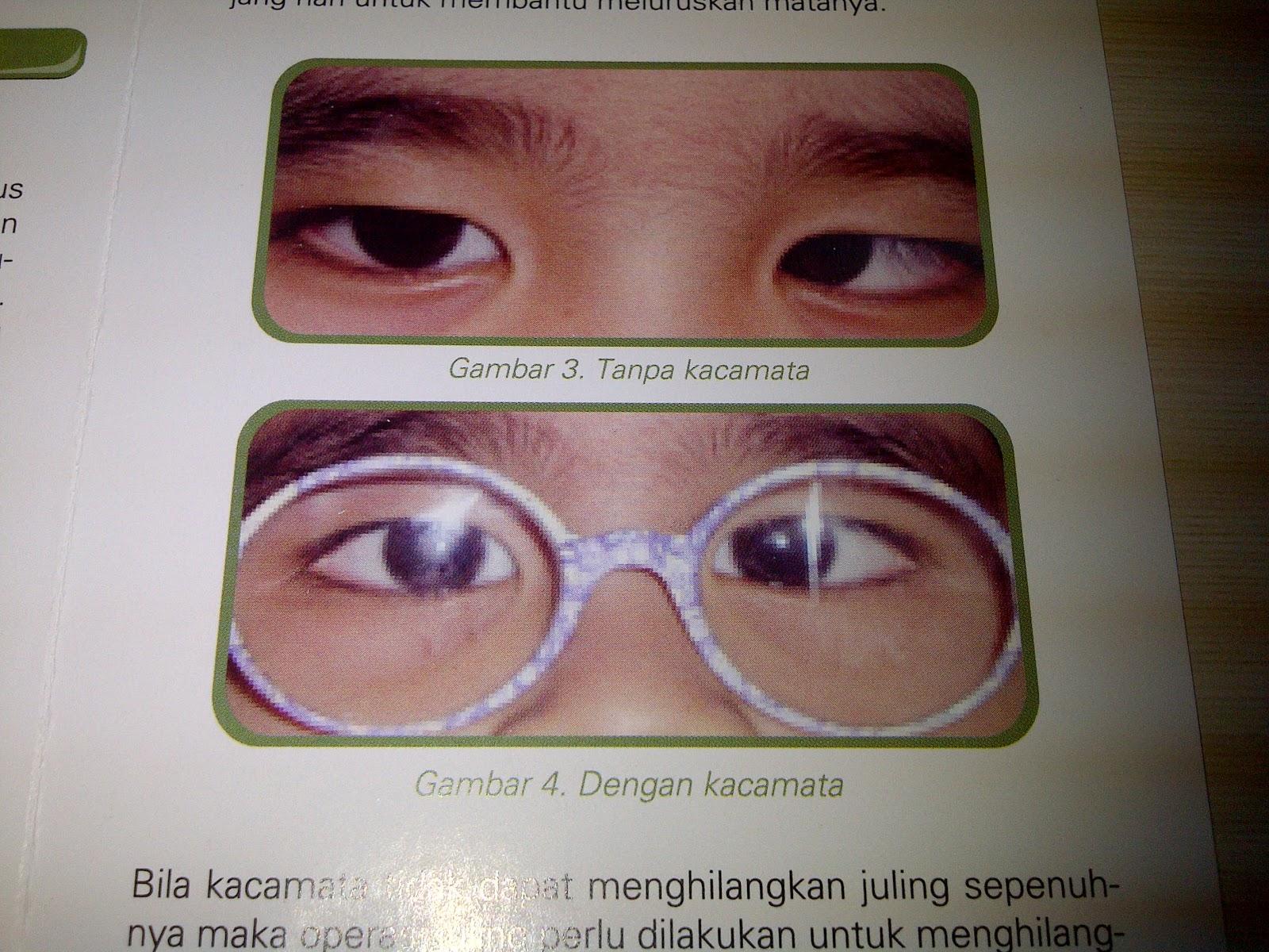 (DOC) Lazy eye   Meliani Franz - Academia.edu