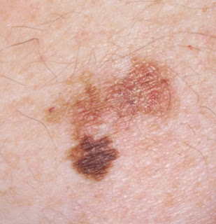 skin cancer symptoms images