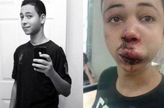 Polis Israel Pukul Remaja AS-Palestin Dihukum