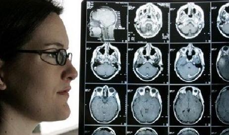 Proses Penyembuhan Kanker Otak Secara Alami