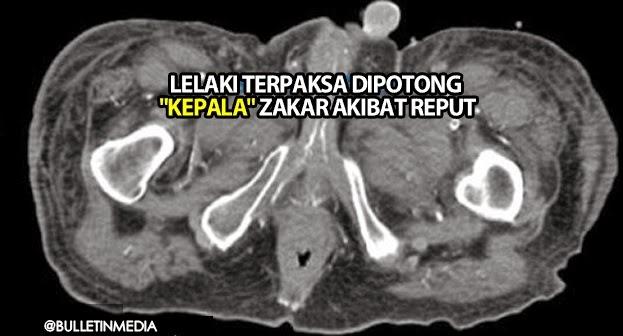 Lelaki Warga Emas Terpaksa Dipotong `Kepala' Zakar Akibat Reput