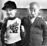 Progeria ( Proses penuaan yang sangat cepat )