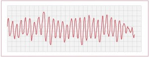 What Causes of Ventricular Fibrillation ?