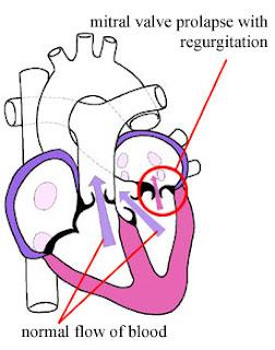 diagnose mitral valve regurgitation