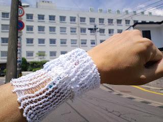 写真:ステロイドパルスの点滴の針を挿したままの前腕とそのバックに見える仙台社会保険病院
