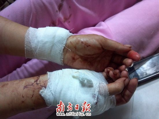 Tangan wanita yang dicederakan dirawat sebaik saja diselamatkan polis
